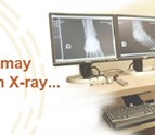 xray_urgenet_care_clinic_lincoln_NE.png